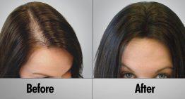 Guide to Choosing a Hair Loss Treatment Solution