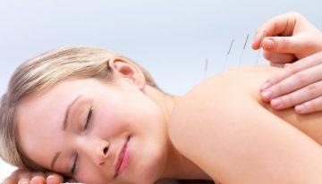 Acupuncture in Ireland