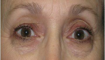 What Is The Average Recovery Time After Undergoing An Eyelid Surgery?