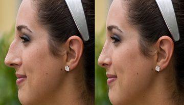 Choosing a Rhinoplasty Surgeon You Can Trust