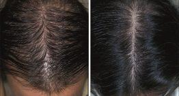 Propecia Treatment for Hair Loss