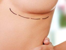 How to Reduce Your Risk of Bottoming Out after Breast Augmentation