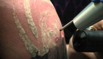 5 of the Most Commonly Asked Questions about Laser Tattoo Removal