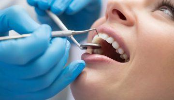 When is the Right Time to Opt for Cosmetic Dentistry in North York?