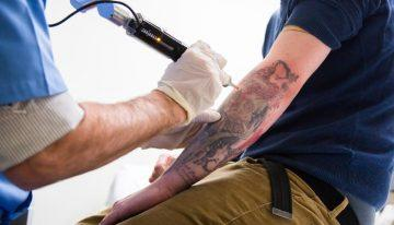 Will My Tattoo Completely Disappear with Laser Tattoo Removal?
