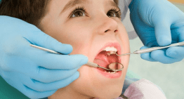 How to Assess Your Tooth Decay Risk