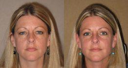 Upper Eyelid Surgery – Blepharoplasty