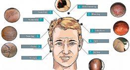 9 Possible Side Effects of  Hair Transplant  Surgery