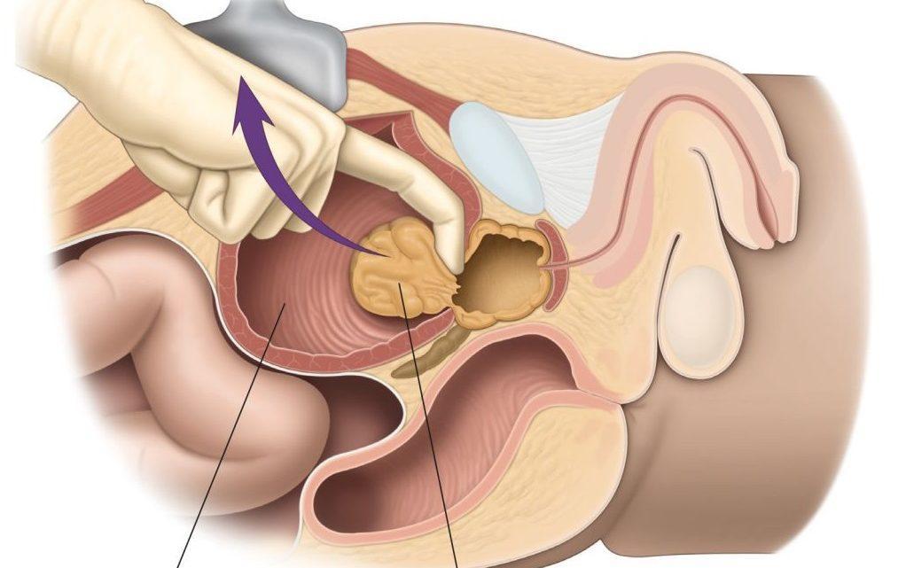 Sex, Prostate Cancer Me