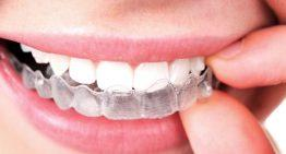 THE FUTURE OF COSMETIC MEDICINE: IS IT ALL JUST INVISALIGN ALIGNERS?