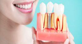 Why You Should Opt For A Single Dental Implant