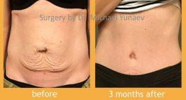 What You Need To Know About The Tummy Tuck Procedure