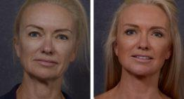 Face Lifting And Chin Implants Will Make You Look Better