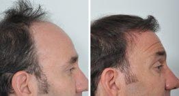 Why FUE (Follicular Unit Extraction) is the world's most effective Hair Restoration