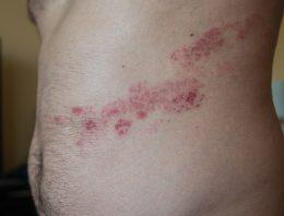 How Contagious is Herpes Zoster? How to Avoid Transmission