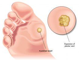 Plantar Warts How to Identify & Treat Them