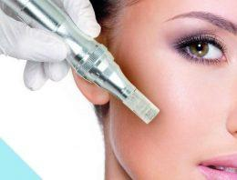 4 Things You Must Know About Getting a Microneedling Treatment