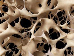 What is the best treatment for soft, brittle bones (osteoporosis)?