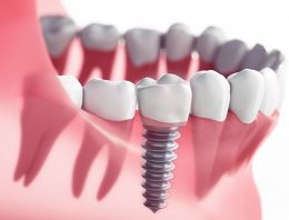 5 methods for Dental Implants Stoke-on-Trent