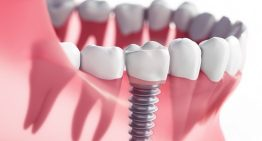 5 methods for Dental Implants Stoke-on-Trent