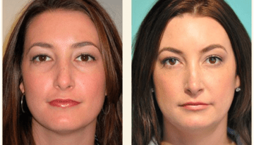 Improve The Appearance of Your Eyes With Tear Trough Treatment