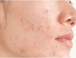 Surprising Causes of acne on the face
