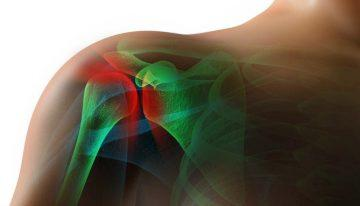 Pain in the Shoulder Joint After 60