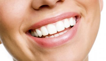 Tips to Turn Your Teeth White at Home During Holidays