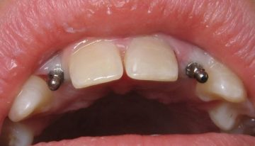 The Cost of Mini Dental Implants