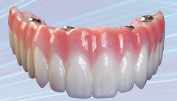 Same Day Dental Implants For Quick And Safe Operation