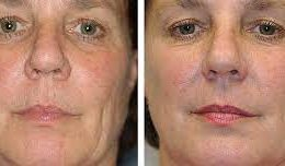 What Makes Thermage Different from Other Skin Tightening Treatments